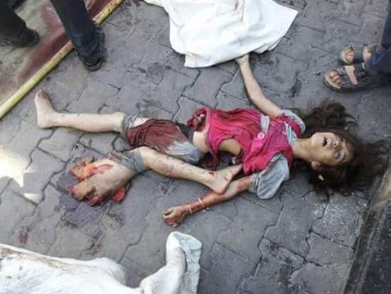 """11 Yro Syrian Arab Muslim Girl Victim of Regime Bombardment (2016.9.9 CE Photograph; Suuriyaa, `Shaam, Halab) #Shiiah #Secular #Terrorist _________________________________ ❝& what is [the matter] with you that you fight not in the cause of Allah & [for] the oppressed among men, women, & children who say, """"Our Lord, take us out of this city of oppressive people & appoint for us from Yourself a protector & appoint for us from Yourself a helper?""""❞ -Allah ﷻ (Translation Qur'aan 4:75) #Quote…"""