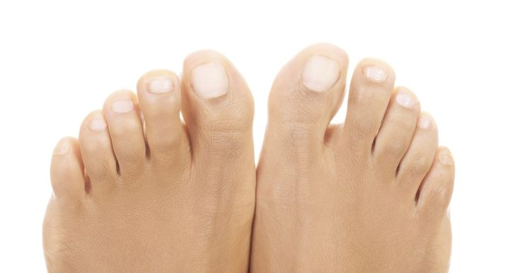 Thick, yellow finger- or toenails are often caused by nail fungus. Nail fungus may begin as a small spot of yellow or white, but if left untreated, will soon spread and turn the affected nail thick, yellow and crumbly. Fingernail fungus can occur with artificial nail tips, as the tips seal in heat and moisture, letting fungus thrive. Toes are more...