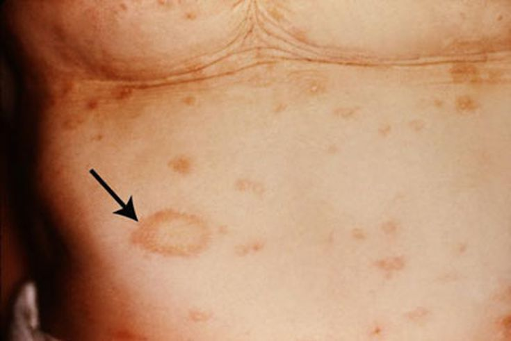 Identify What Common Skin Rash Your Child Has: Pityriasis Rosea - Pityriasis Rosea Picture