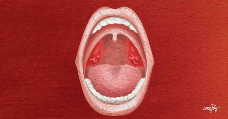 Signs And Symptoms Of Tonsillitis To Watch For