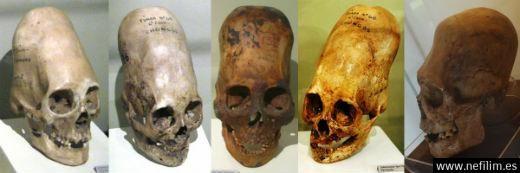 El análisis de ADN de los cráneos alargados deParacasha sido publicado. Resultadosincreibles