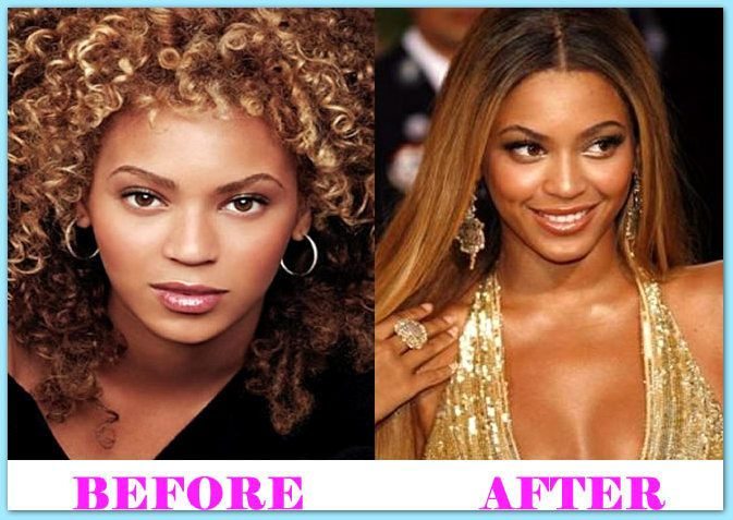 Beyonce Plastic Surgery Before And After  #BeyoncePlasticSurgery #Beyonce #celebritiesplasticsurgery