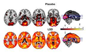 First modern scans of people high on psychedelic drug has given researchers unprecedented insight into neural basis for its effects