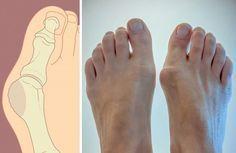 БЛОГ ПОЛЕЗНОСТЕЙ: 5 способов избавиться от косточки на ноге без помощи хирурга. Конец страданиям