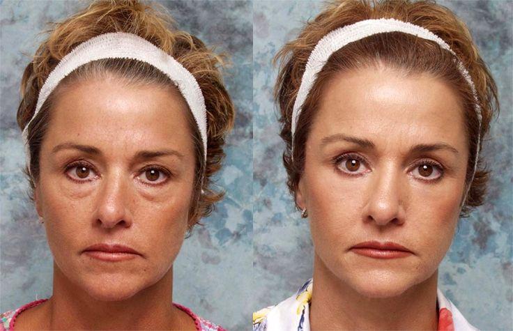 17 Best images about Blepharoplasty Eyelid Surgery on ...