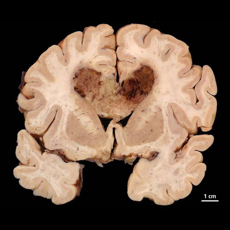 Glioblastomas are typically poorly-marginated, diffusely infiltrating necrotic masses localised to the cerebral hemispheres. The supratentorial white matter is the most common location.  These tumours may be firm or gelatinous. Considerable regional variation in appearance is characteristic. Some areas are firm and white, some are soft and yellow (secondary to necrosis), and still other are cystic with local haemorrhage.  http://radiopaedia.org/articles/glioblastoma