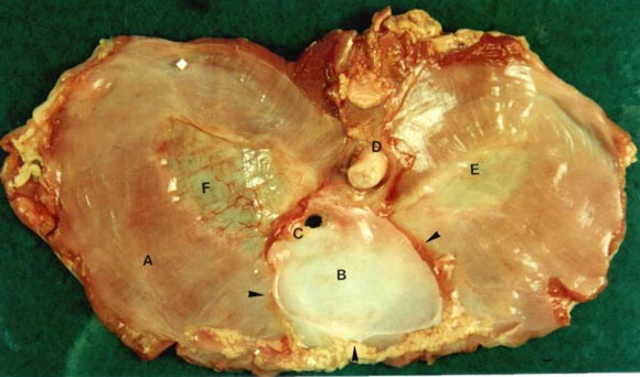 Dissected diaphragm  Cadaver Pictures