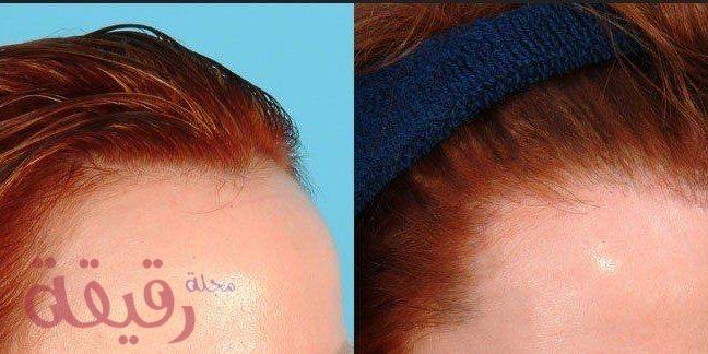زراعة الشعر للنساء في دبي والتقنيات المستخدمة والتكاليف وأفضل المراكز Plastic Surgery Jesus Fish Tattoo Fish Tattoos