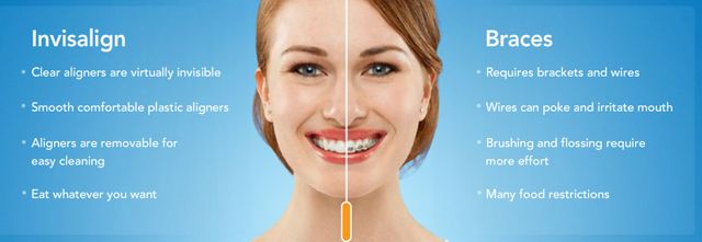 Subtle, fast orthodontic treatment for adults is possible with Invisalign.