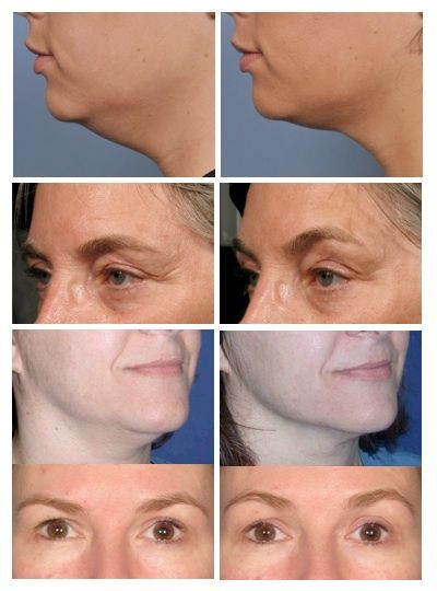 Ultrasound technology for skin rejuvenation In Westbrook CT 203 565 7853 Non surgical solutions