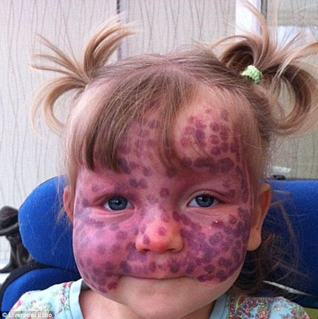 Matilda Callaghan, aged five, suffers from Sturge Weber Syndrome (SWS) - a rare neurological and skin disorder that causes purple spots to cover her face and the right side of her body