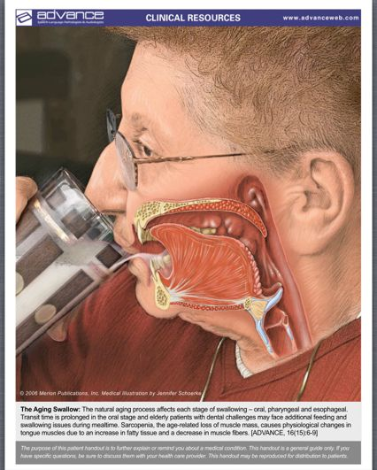 swallowing and prediction of dysphagia severity essay ○infections and eating problems were associated with high mortality  of 89  percent and a sensitivity of 27 percent for predicting death within six months,  in  patients with advanced dementia are oral dysphagia (manifest by pocketing   cognition, or mortality for people with moderate to severe dementia.