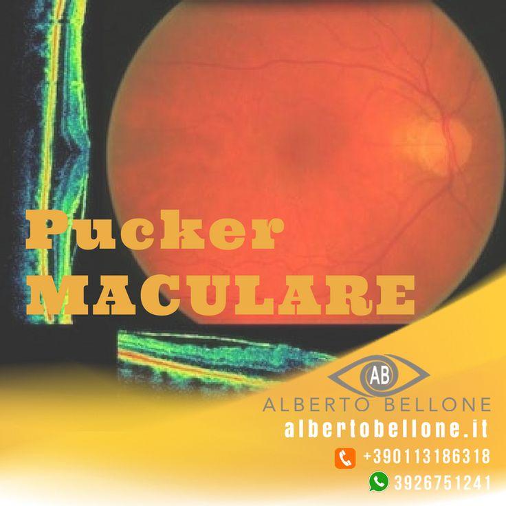 PUCKER MACULARE - Dr. Alberto Bellone - Oculista Torino e Milano  Il Centro del dr. Alberto Bellone è per la vitrectomia Centro Eccellenza per la diagnosi e cura del pucker maculare. Non è chiaro cosa determina la formazione del pucker maculare (detto anche Membrana Epiretinica): può insorgere spontaneamente, con più frequenza dopo i 50 anni e può essere secondario a processi infiammatori oppure dopo un distacco di retina o un trattamento laser. La membrana epiretinica (o pucker maculare) è…