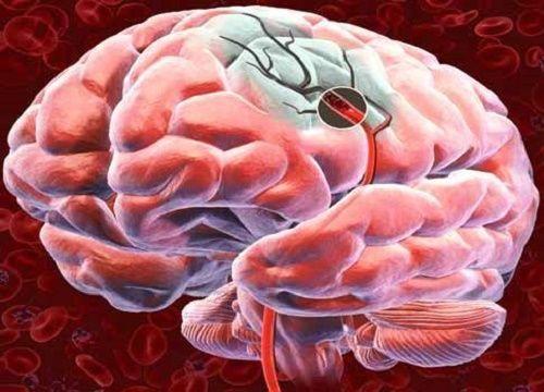 Descubre 5 formas para favorecer el flujo sanguíneo cerebral El flujo sanguíneo cerebral es el suministro de sangre que llega a nuestro cerebro en cada momento.