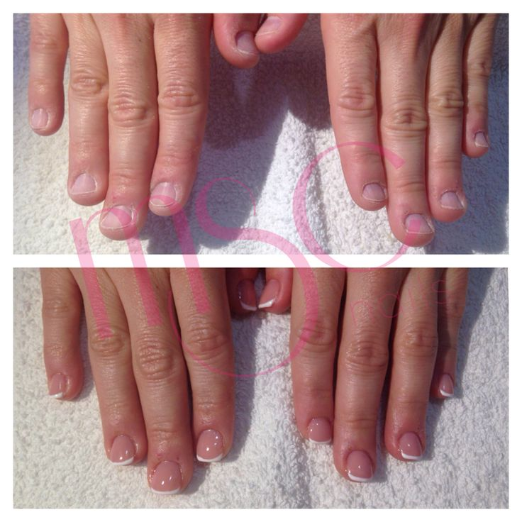 ANTES Y DESPUÉS  #mscnails #uñasmordidas #bitenails #beforeandafter #antesydespues #nails #uñas #ungles #ongles #uñasacrilicas #acrylicnails #nailart #naildesign #art #design #semilac #dotingtool #gelpolish #esmaltesemi #semipermanente
