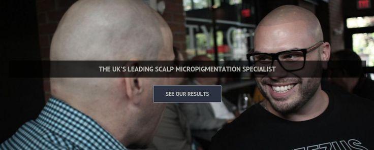 Scalp micropigmentation experts   Scalp Studio