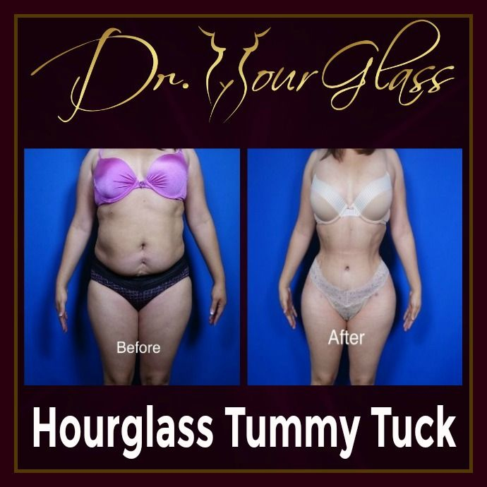Do you want to know how she achieve this figure? Well she underwent the Hourglass Tummy Tuck procedure which is designed to get rid of excessive fat on the abdomen and reshaping your body into an hourglass.