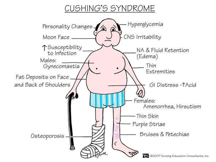 memory notebook of nursing: cushing's syndrome
