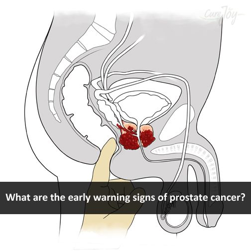 19 best images about prostrate on Pinterest | Different ...