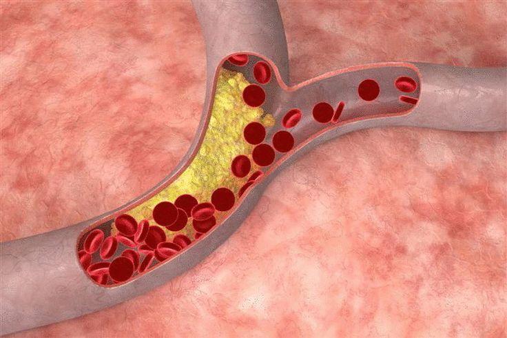 Натуральные средства, которые помогут снизить уровень холестерина