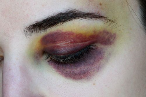 50 Best Bruises Black Eyes Broken Noses Scratches