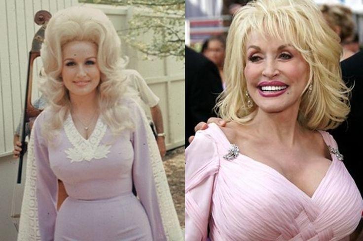 3. #dolly Parton - 20 #célébrités avec mauvaise #chirurgie plastique... → #Celebs