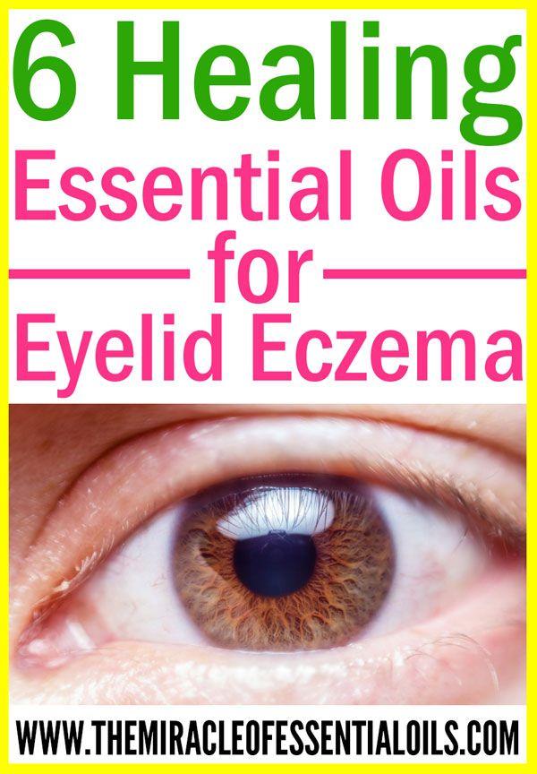 Best 25+ Dry Itchy Eyes Ideas On Pinterest