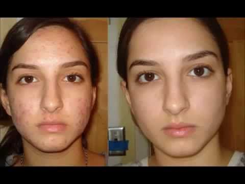 How To Eliminate Acne Scars Naturally