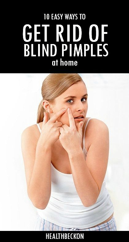 Get Rid of a Blind Pimple: Pimples are unpleasant for a lot of reasons, but add pain to the problem and it's even worse. A blind pimple can be more painful than other pimples because it is deep within the skin, closer to the nerves.Here are the top 10 ways to get rid of a blind pimple.
