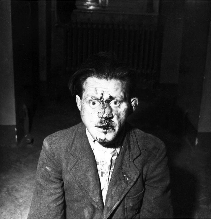 Portrait of a battered German SS camp guard after the liberation of Buchenwald concentration camp. Following the liberation of Buchenwald by the U.S. 9th Armored Infantry Battalion, 6th Armored Division, part of the U.S Third Army (United States Army...