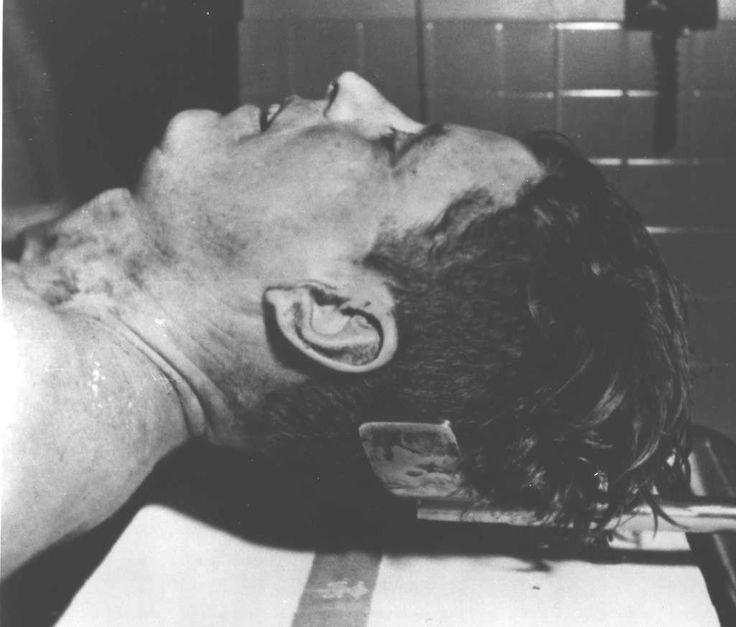 pre-autopsy John F. Kenndy