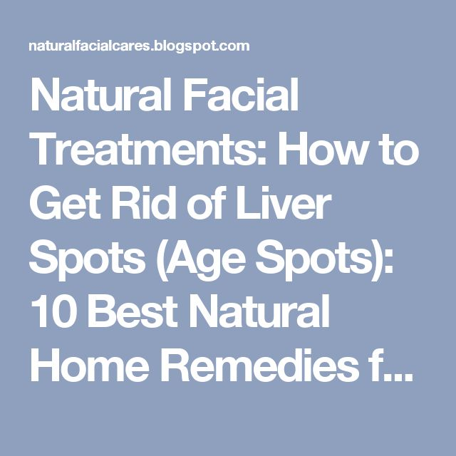 9 Tips For Age Spot Removal And Prevention advise