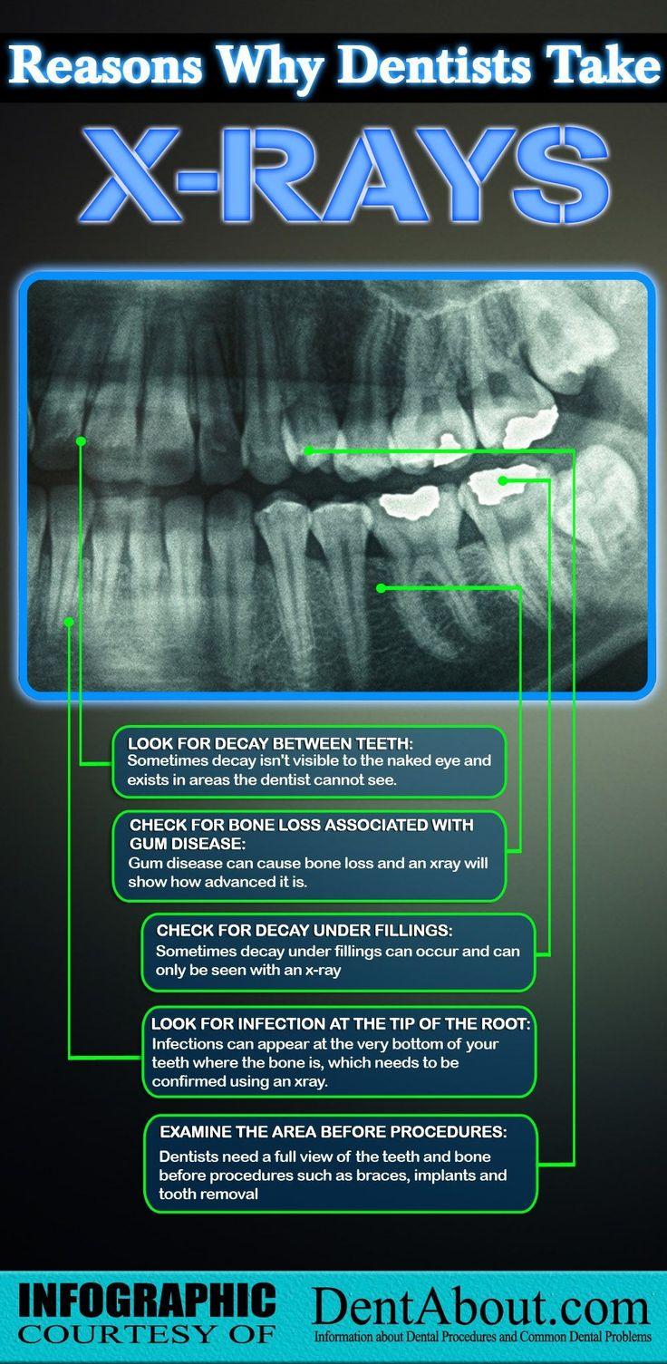 67 best Dental Gifts & Art images on Pinterest | Dental art, Teeth ...