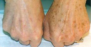 După vârsta de 40 de ani, pe piele apar tot mai multe pete pigmentare: cu contururi neregulate, maronii, acestea afectează aspectul estetic al pielii și amintesc de înaintarea în vârstă. Însă, din fericire există un remediu, care elimină temeinic aceste neajunsuri. Petele maronii pot fi înlăturate rapid cu ajutorul unei cepe obișnuite! Cum puteți scăpa de petele de vârstă Ingrediente 2 linguri de suc de ceapă 2 linguri de oțet Mod de preparare și aplicare Acest remediu de super albire se…