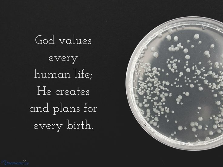 How should Christians view in vitro fertilization, or #IVF? Is it something the Bible can even address? http://www.gotquestions.org/in-vitro-fertilization.html