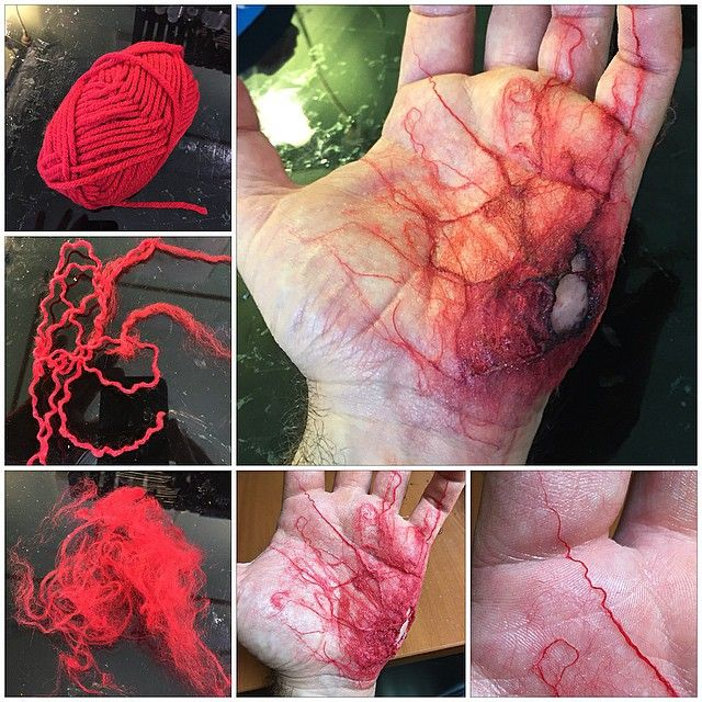 "make veins using red cotton or wool. Pull some red wool apart so you see the individual fibers. Stick them down to your skin with prosaide or latex. Use a needle to adjust the shape while the glue is still wet. Pic shows ""infected zombie bite"", but you could use this technique anywhere"