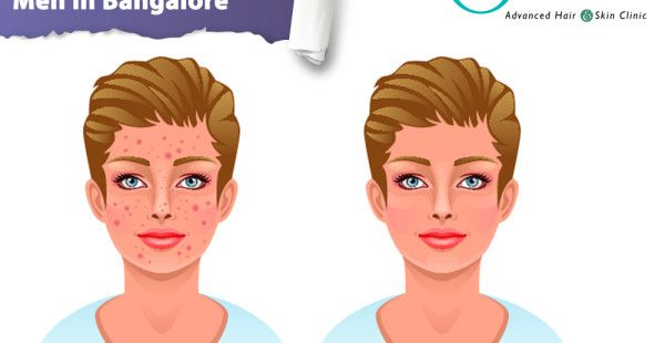 https://www.olivaclinic.com/blog/acne-treatment-for-men-in-bangalore/