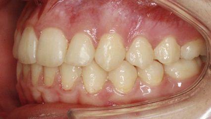 Imagen después del tratamiento con ortodoncia Damon en nuestra Clínica dental Los Valles, de Guadalajara (España).