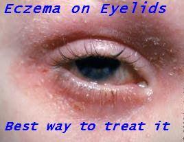 Treating Eczema On Eyelids Naturally