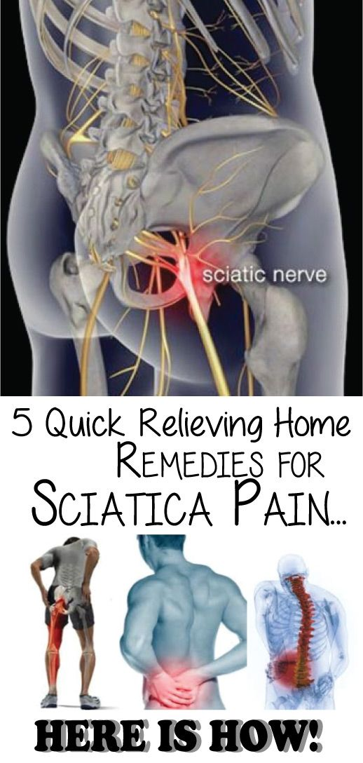 Want to cure that sciatica pain for good? Here's the top 5 remedies you definitely should consider…What natural remedies can help with sciatica nerve pain? The aching is almost unbearable at times. Please help! The good news is there are some excellent home remedies for this condition that work exceptionally well Here's 5 of the best in order of importance…