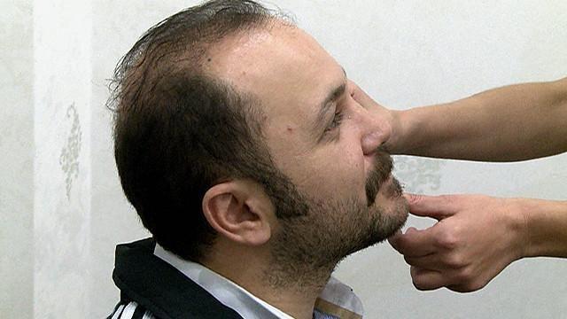 1000 ideas about implante de barba on pinterest beards. Black Bedroom Furniture Sets. Home Design Ideas