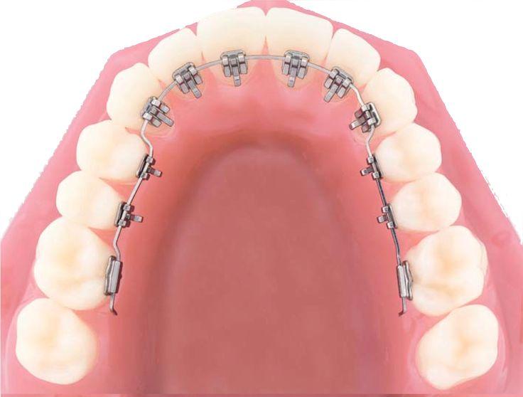 La ortodoncia lingual es un tipo de aparato de ortodoncia fija que une los soportes ortodónticos en la parte interna de los dientes. La principal ventaja de la ortodoncia lingual es su casi invisibilidad en comparación con los brackets estándar que se fijan en la parte externa del diente.