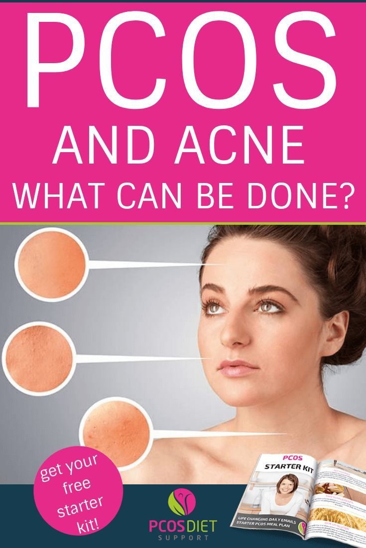 Pcos And Acne What Can Be Done Pcos Hormonal Acne Supplements Skin Care Solutions