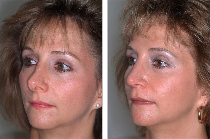 Filipino Before \ After Rhinoplasty Cosmetic Surgery by DrRaynald - plastic surgery consultant sample resume