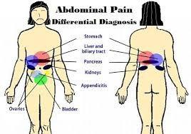 Lysis of Abdominal Adhesions Symptoms Like Intestinal Adhesions And Stomach Adhesions
