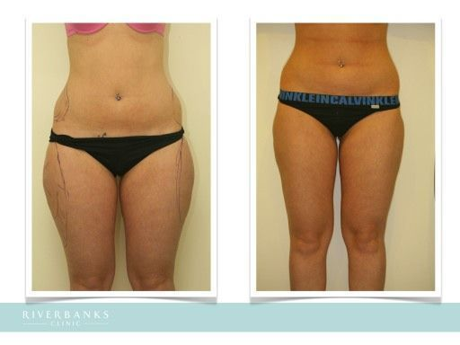 Image result for breast fat graft before and after – Liposculpture Before and Af…