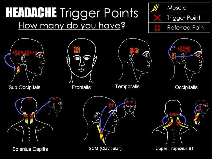 17 best images about trigger points on pinterest massage low back and fibromyalgia. Black Bedroom Furniture Sets. Home Design Ideas