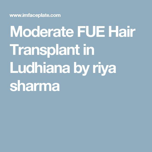 Moderate FUE Hair Transplant in Ludhiana by riya sharma