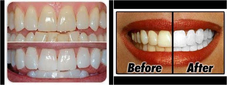 Di adiós a los dientes amarillos en 2 minutos, ¡apunta estos trucos!