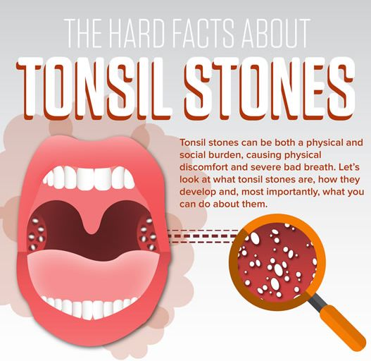 Struggling with unexplainable #badbreath, despite your daily dental routine? You may be dealing with Tonsil Stones. #oralcare #oralhealth